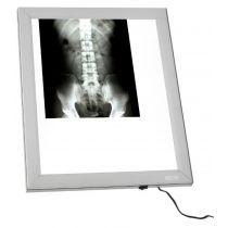 Negativoscopio verticale X-ray a LED - 42X49 Cm